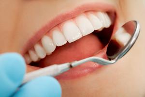 Zahnfleischbehandlung - Parodontologie