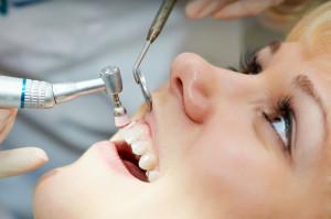 Professionelle Zahnreinigung - Prophylaxe