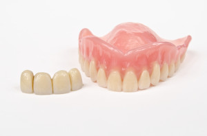 Zahnersatz - Implantate